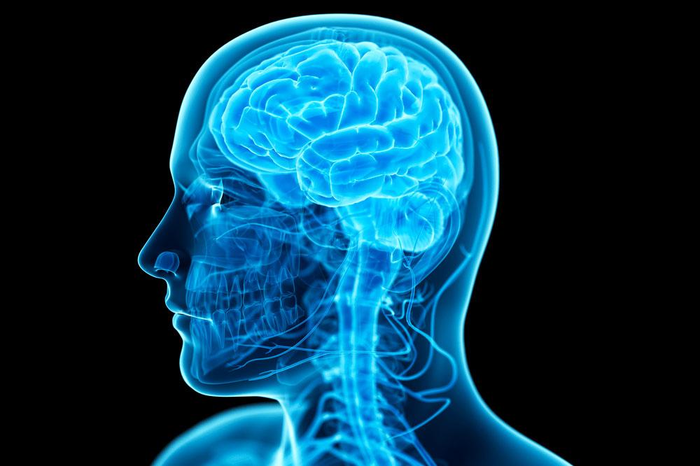 Hjerneslag